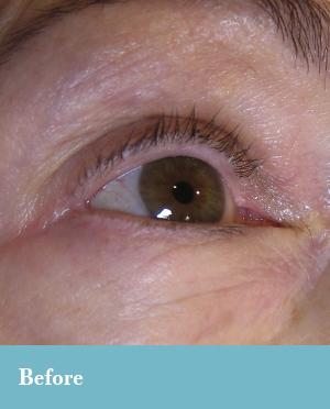 Permanent eyeliner in Lynchburg, VA.